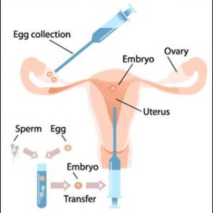 IVF - Male & Female Fertility Treatment
