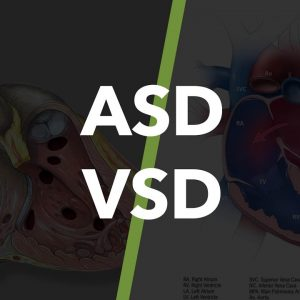 VSD/ASD-Treatment-India