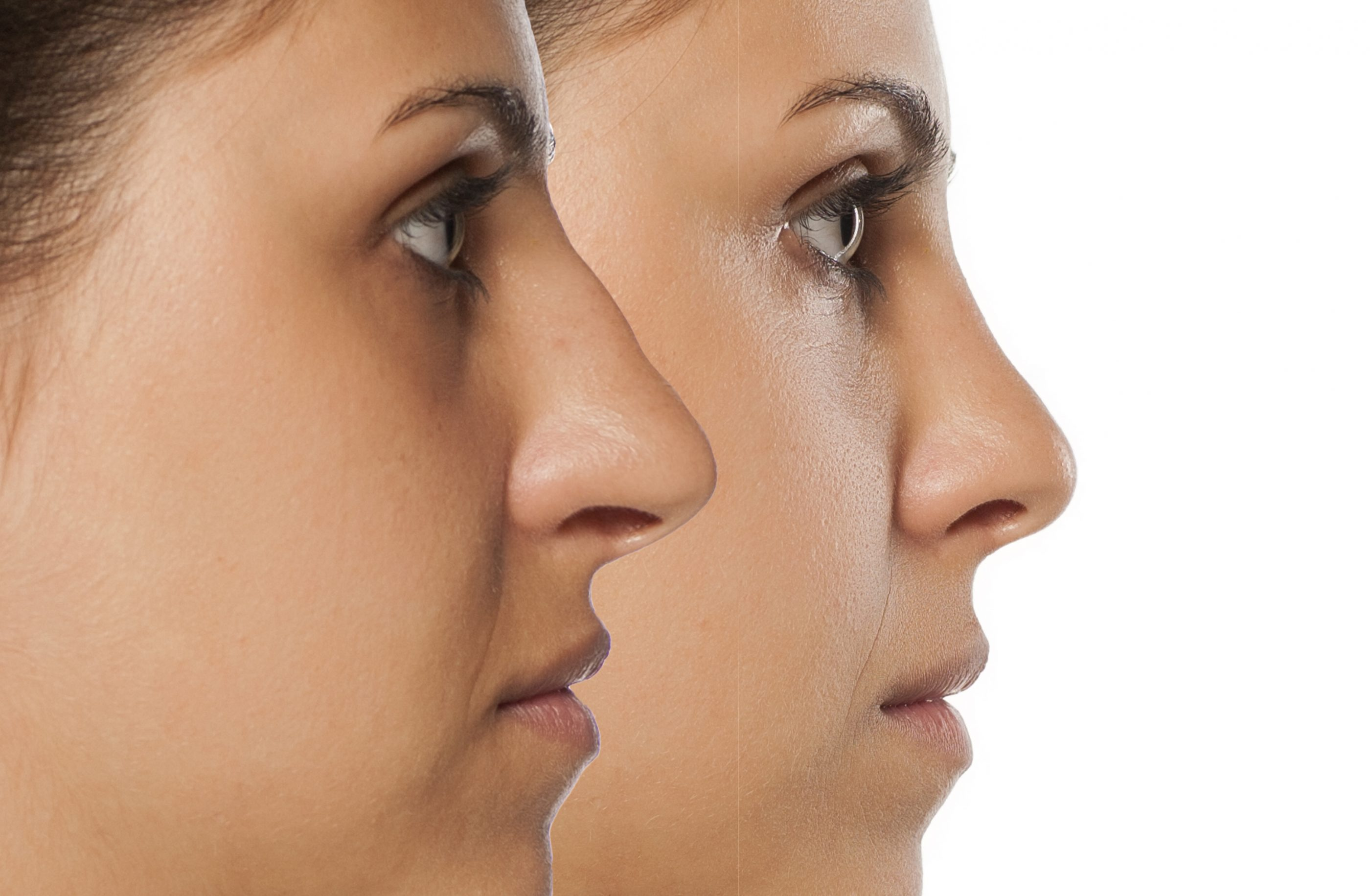 Nose-Job-Rhinoplasty