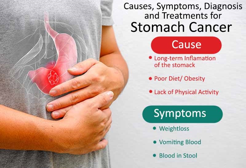 Causes-Symptoms-Diagnosis-and-Treatments-for-Stomach-Cancer