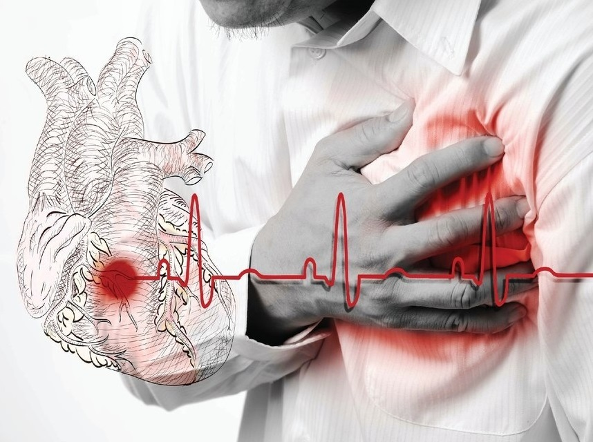 HEART PROBLEMS AND THEIR TREATMENTS