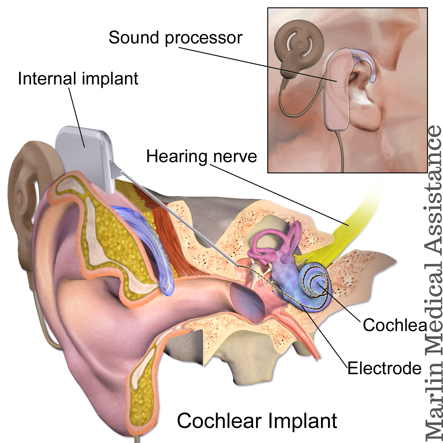 Cochlear-Implan-Surgery