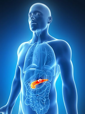 Pancreatic-cancer-treatment-in-India
