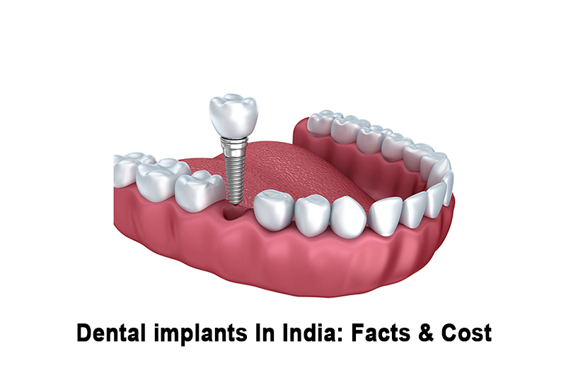 dental-implant-clinic-in-india