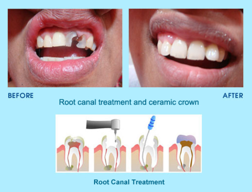 root-canal-treatment-in-india