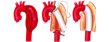 aortic stent grafting treatment in india
