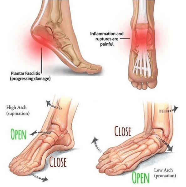 foot-and-ankle-treatment-in-India